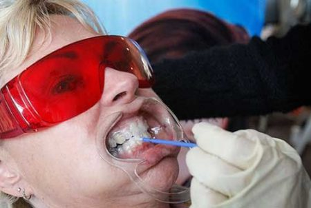 mondspreider voor tanden bleken