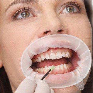 Optragate mondspreider in mond