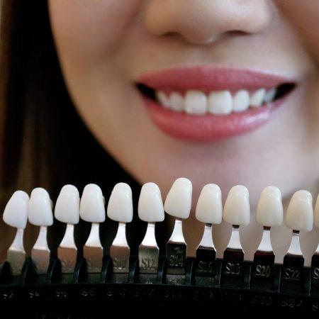 tanden shadeguide, witte tanden