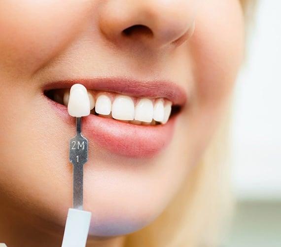 groothandel tanden bleken