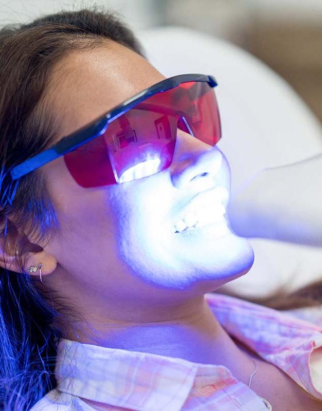 professioneel tanden bleken