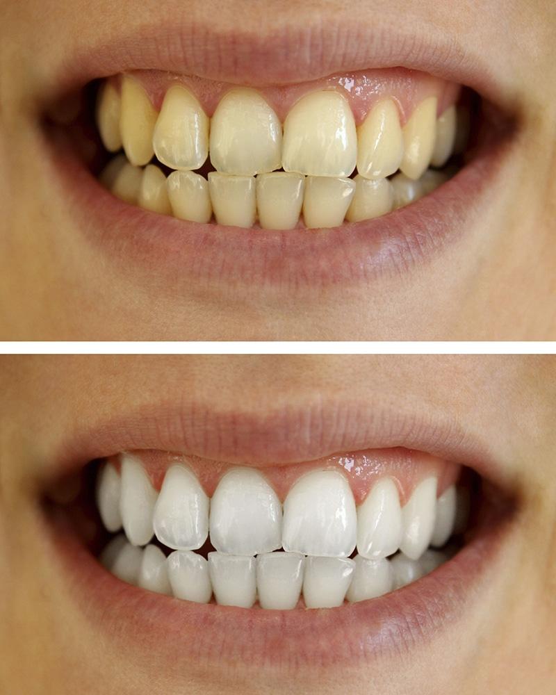 opleiding tanden bleken